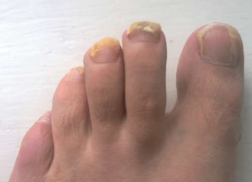 Suffer from Fungal Nails?