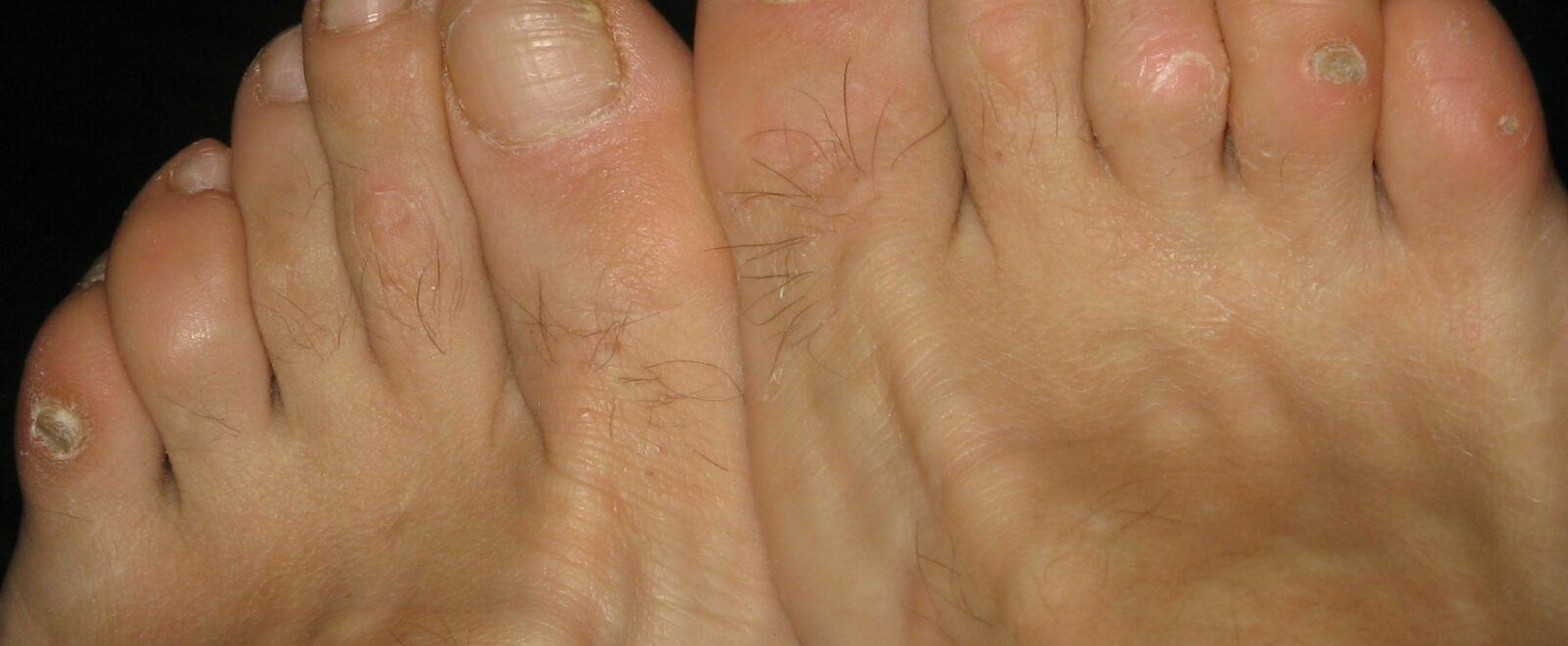 Suffer from Hard Skin on the foot?
