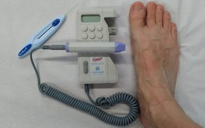 Why Use a Doppler On Your Feet